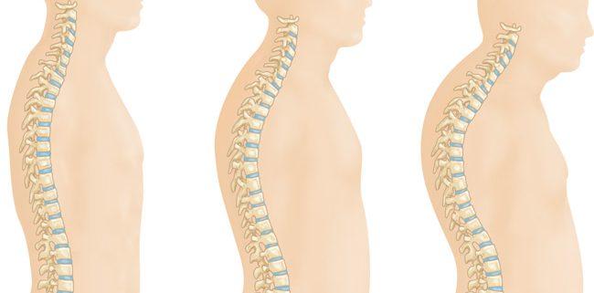 Výsledok vyhľadávania obrázkov pre dopyt osteoporosis