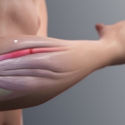 Tendinopathies - inflammation of a forearm extensor muscle